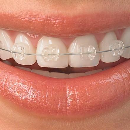 Ortodontska terapija