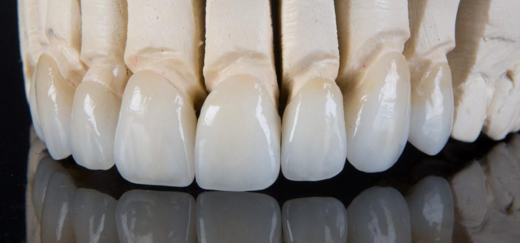 Zubni ispuni i fasete