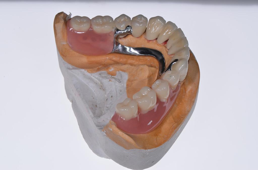 stomatološke proteze beograd